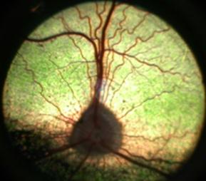 retina1-1