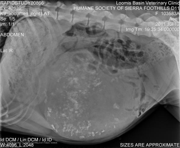 D11-xray abdomen1