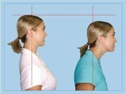 neckposture