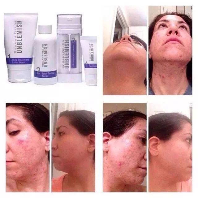 Fields unblemish wash facial