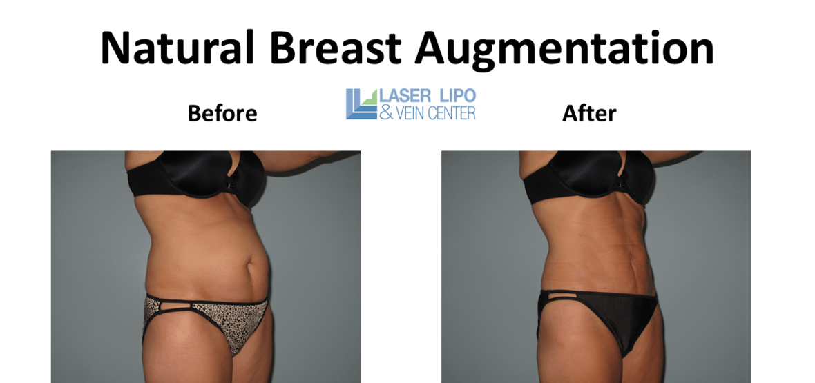 Abs-and-Flanks-Liposuction
