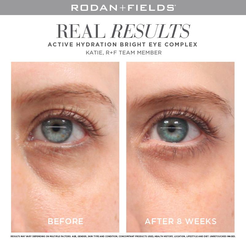 retin testimonial