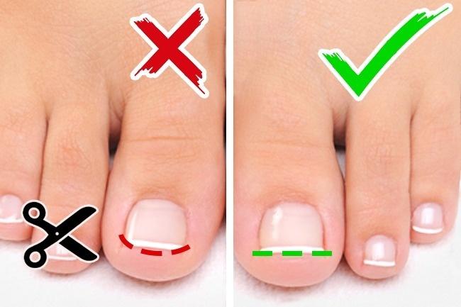 3. carefully cut nails straight across