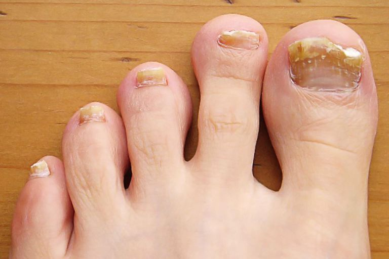 toe-fungus-resized-56a315a95f9b58b7d0d04d72